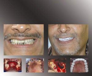 dental implants youth