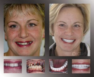 maintain healthy smile